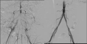 Iliac Angioplasty