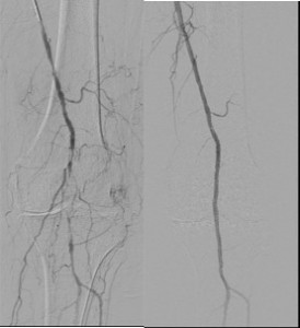 Popliteal Angioplasty
